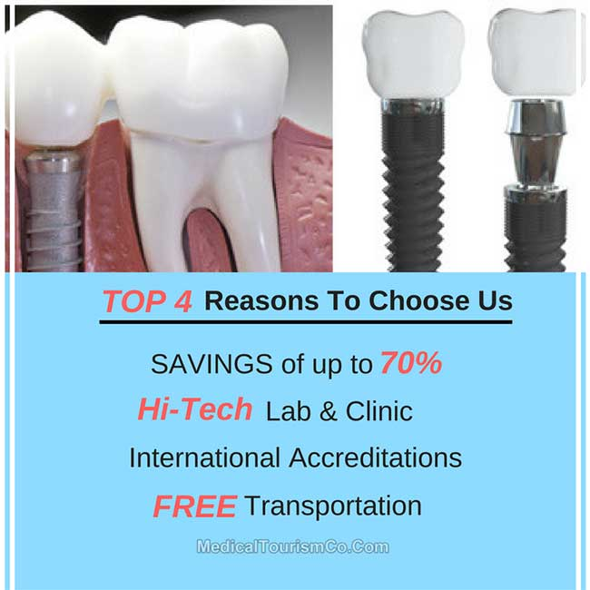 Why Choose Us For Dental Implants