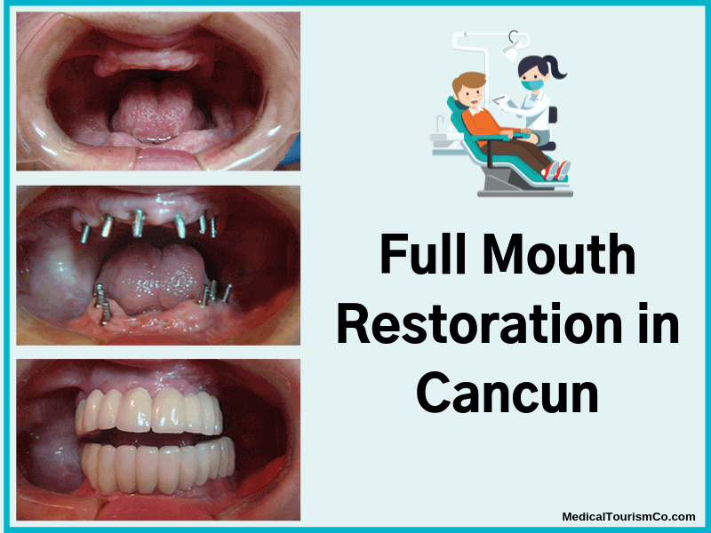 Full-Mouth-Restoration-in-Cancun-1-1-1-1-1-1.png