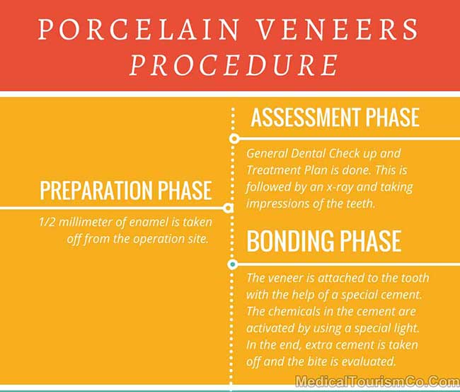 Dental Veneers Procedure
