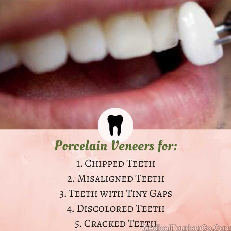 Why Porcelain Veneers