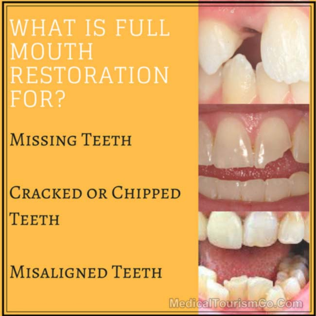 Why Full-mouth-restoration-for_-1