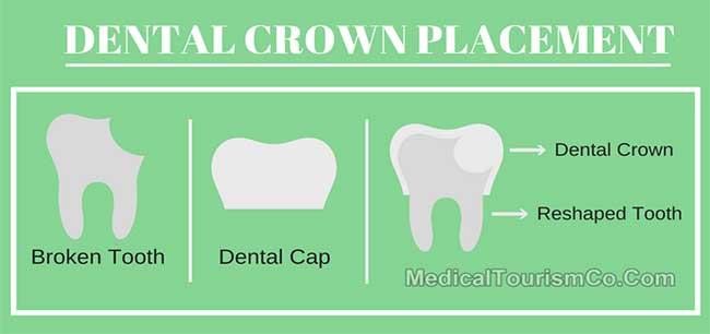 Dental Crown Placement Process