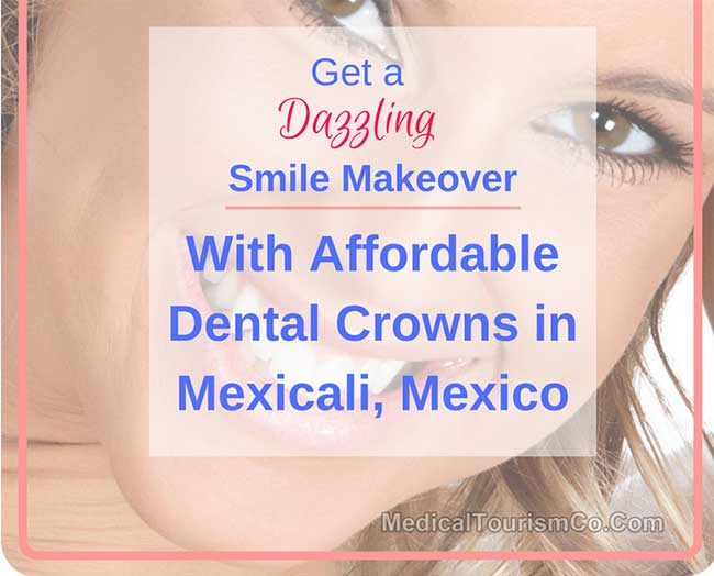 Dental Crowns in Mexicali Mexico