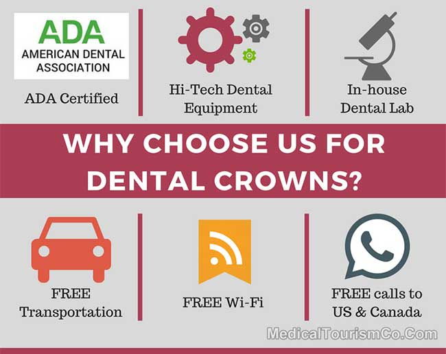 Why Choose Us for Crowns in Mexicali Mexico