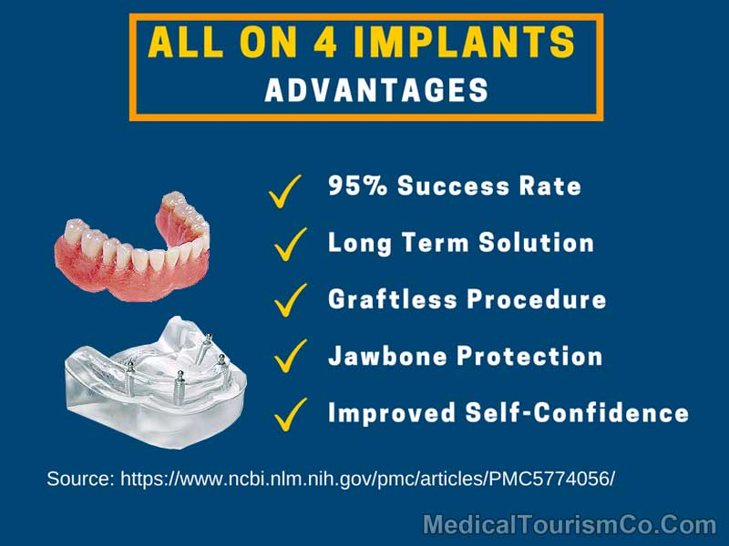 All on Four Implants - Advantages
