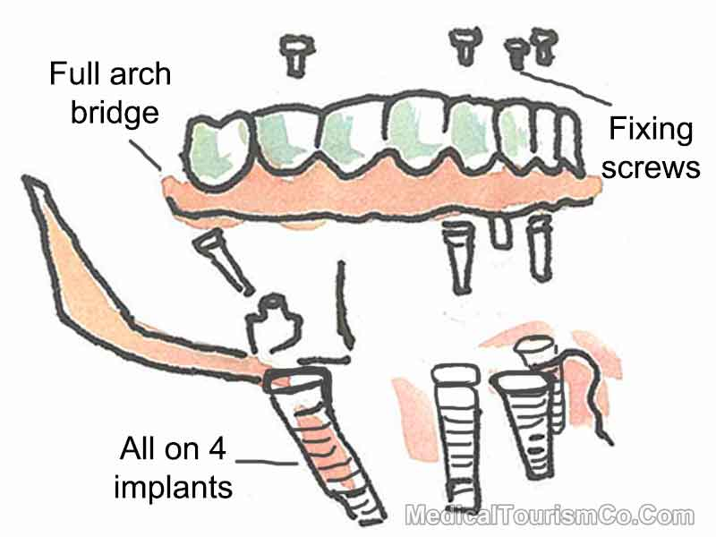 All-on-4 Dental Implants in Cancun - Mexico