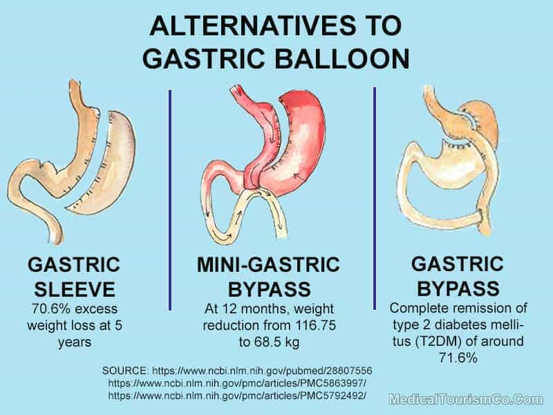 Alternatives to Gastric Balloon