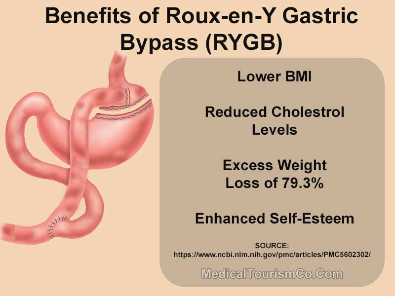 Benefits of RYGB