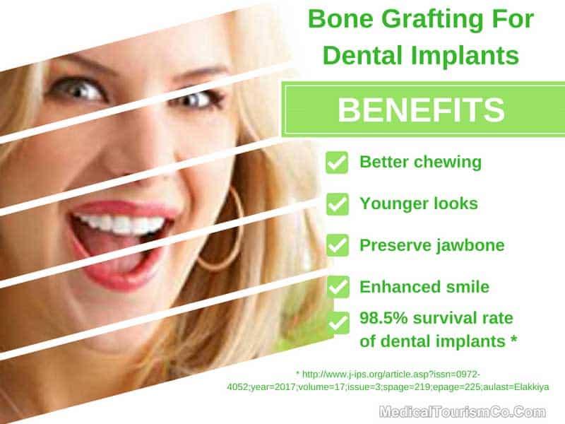 Benefits of Dental Bone Grafting