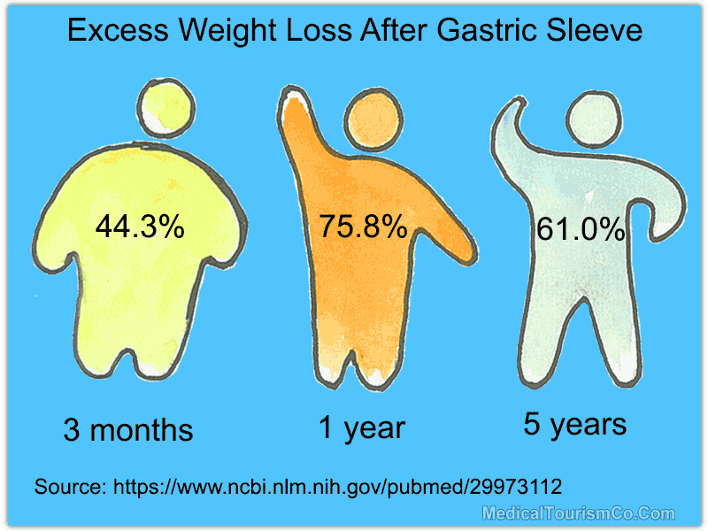 Excess Weight Loss After Gastric Sleeve Surgery