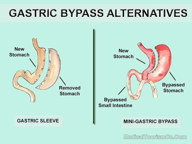 Gastric Bypass Alternatives