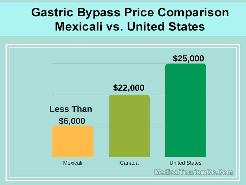 Gastric Bypass Price Comparison