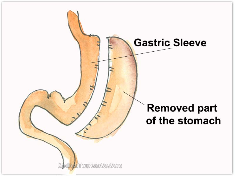 Gastric Sleeve in Cancun