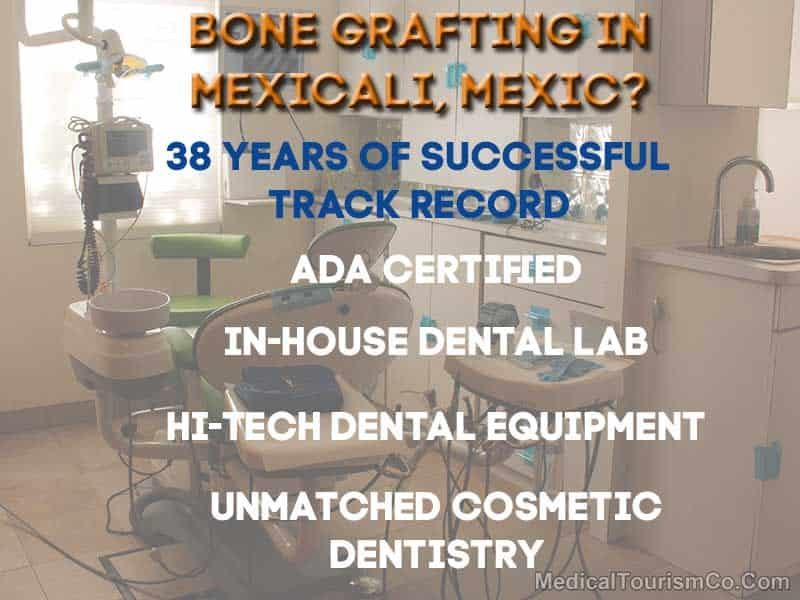 Dental Bone Grafting in Mexicali