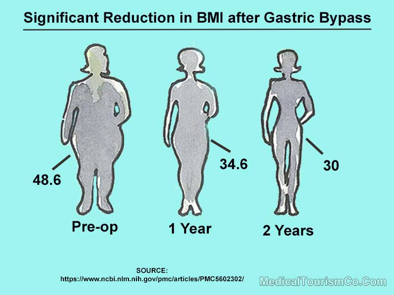 Reduction in BMI after Gastric Bypass