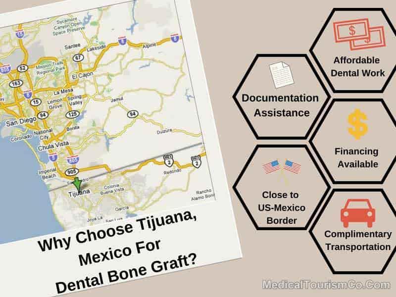 Reasons For Choosing Tijuana For Dental Bone Graft