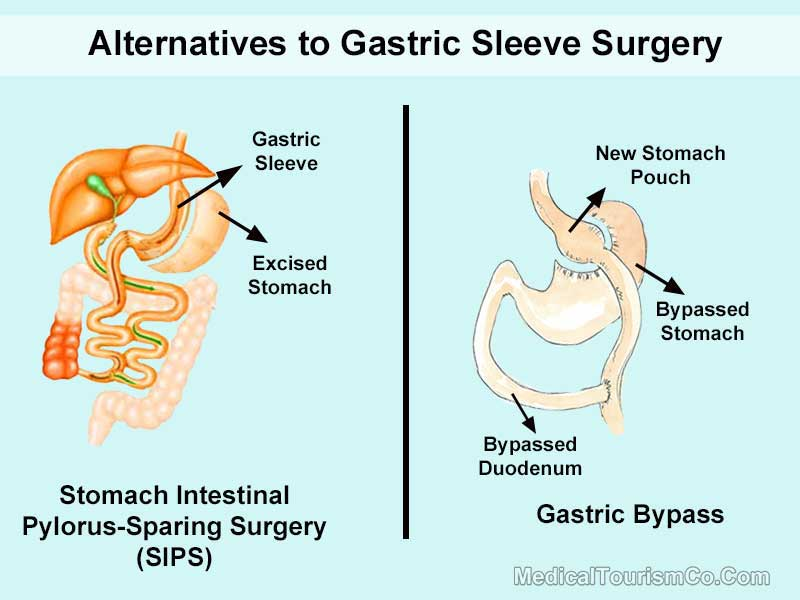 Alternatives to Gastric Sleeve
