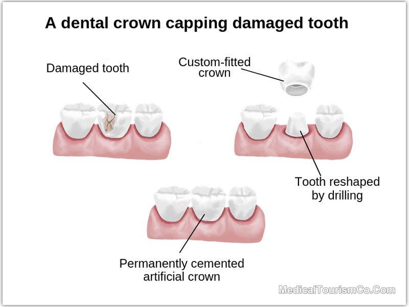 Dental Crowns in Cancun: Best Price | Low Cost Dental Bridge