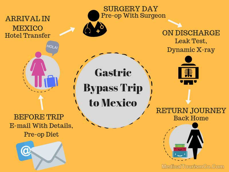 Gastric Bypass Trip To Mexico Schedule