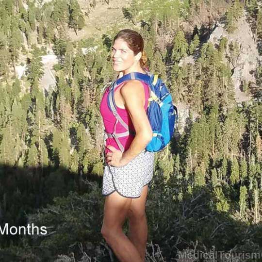NSV - Hiking After Gastric Bypass