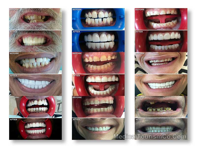 All on 4 Implants Tijuana Before and After
