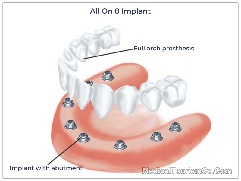 All-on-8 Dental Implant