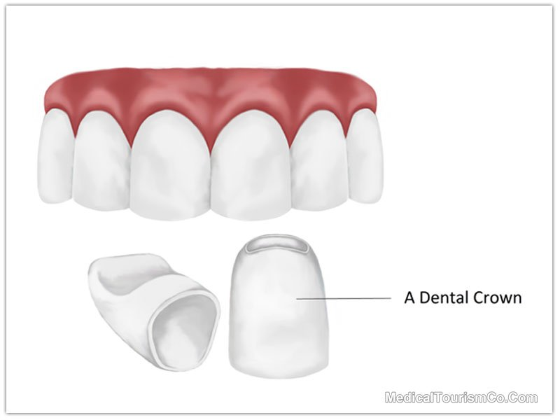 Dental Crowns Costa Rica