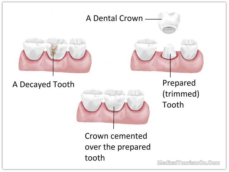 Dental Crowns Process