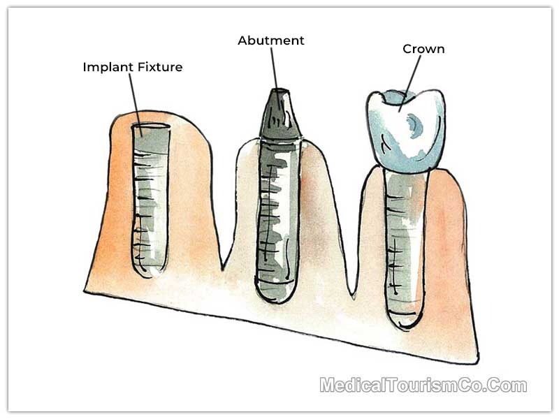 Dental Implant and Crown in Cabo
