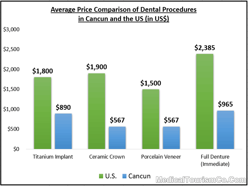 Average Price Comparison of Dental Procedures in Cancun and the US
