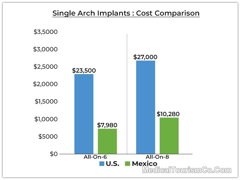Single Arch Cost Comparison America Mexico