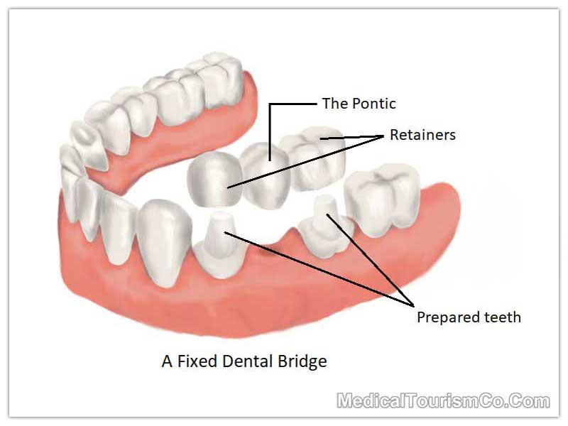 Dental Bridge Mexico