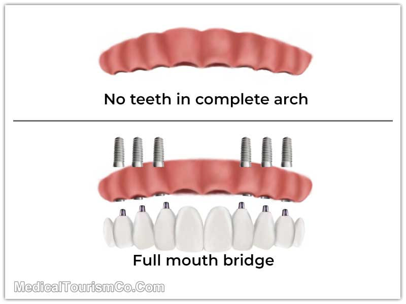 Full Arch Dental Bridge Costa Rica