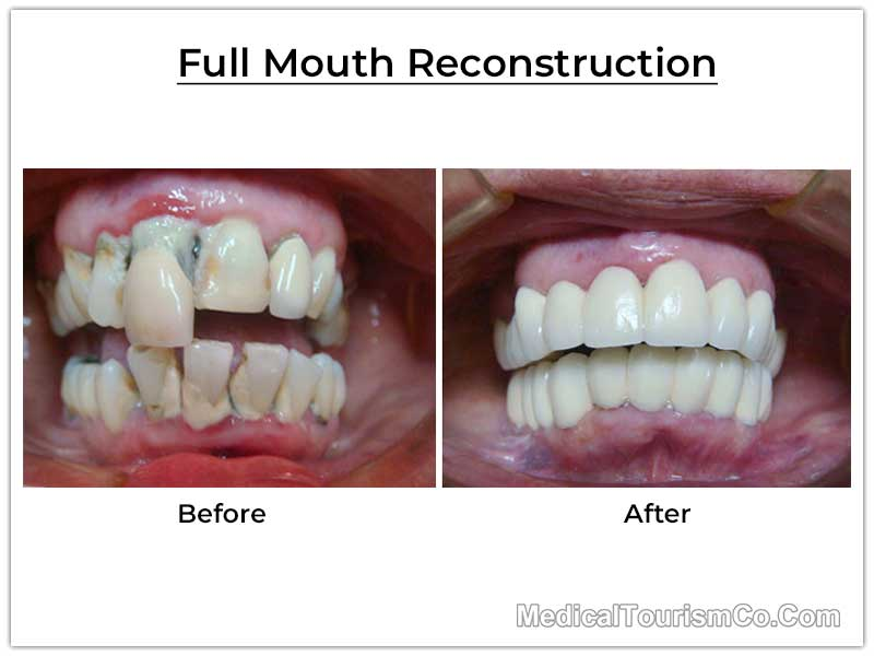 Full Mouth Restoration in Costa Rica Before After