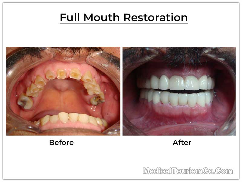 Full Mouth Restoration