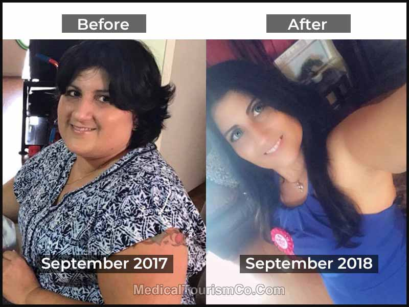 Bariatric Sugery Mexico Weight Loss Surgery Cost 3899