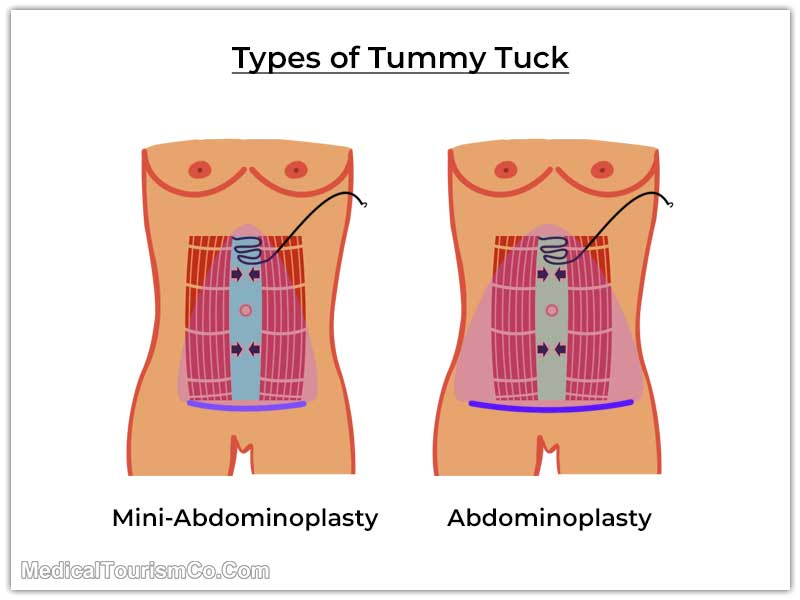 Mini and Normal Abdominoplasty