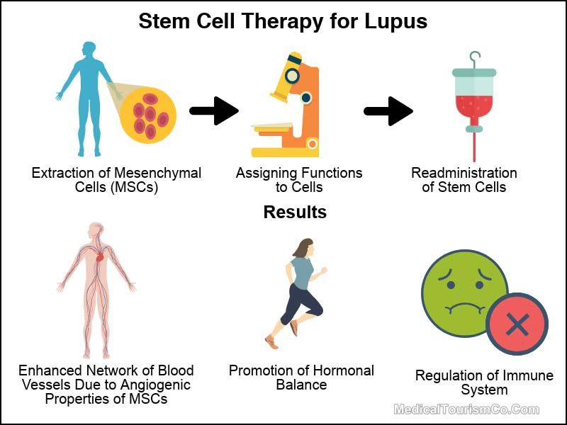 Stem Cell Therapy for Lupus in Mexico Infographic