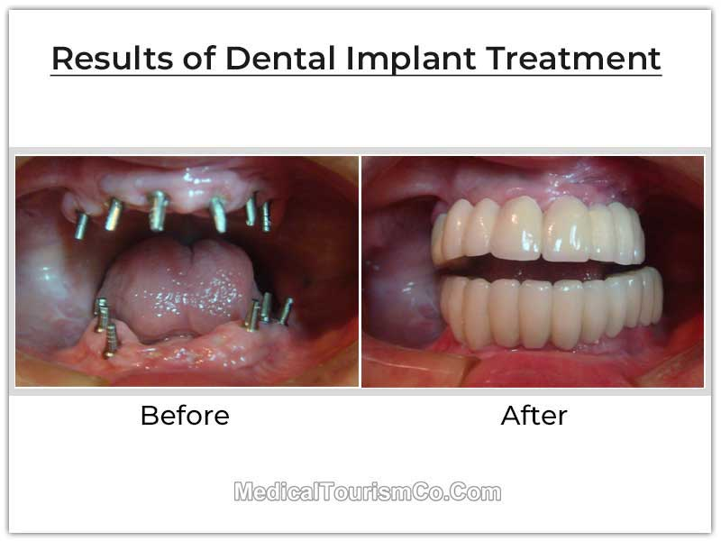 Dental Implants Mexico Before and After