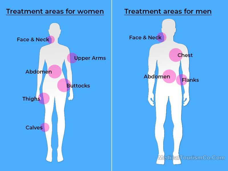 Liposuction Tijuana Mexico Gender Wise