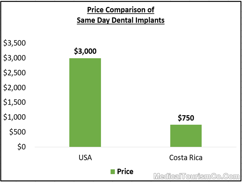 Price of Same Day Dental Implants in Costa Rica