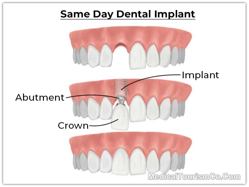 Same Day Dental Implant in Ahmedabad