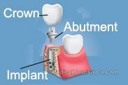 Implant Crown Abutment Mexico