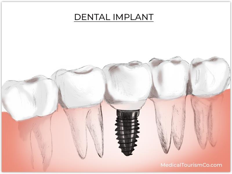 Dental Implant Phuket