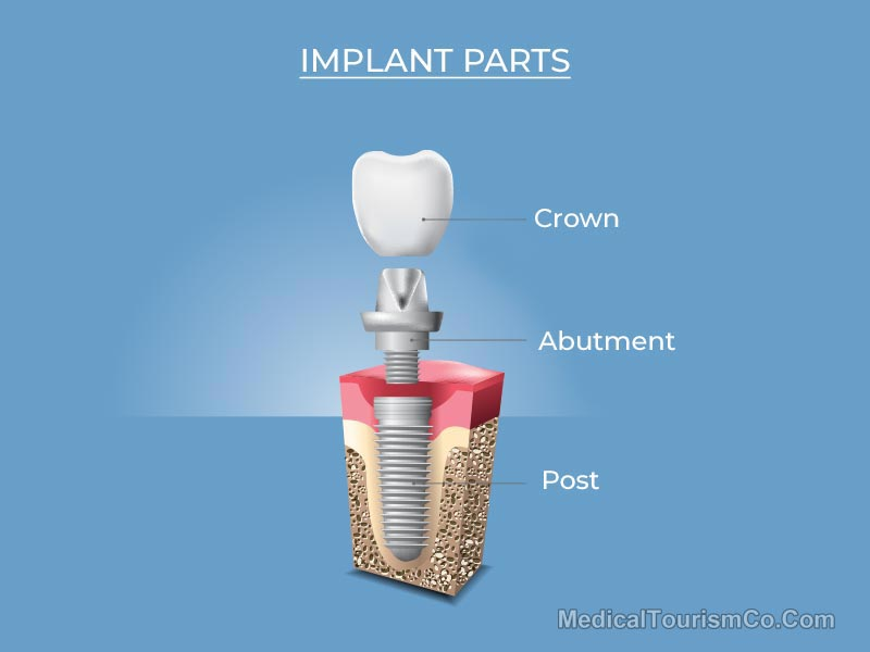 Dental Implant in Cambodia