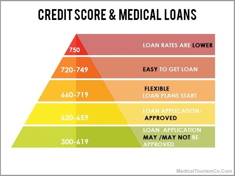 Credit Score for Loan
