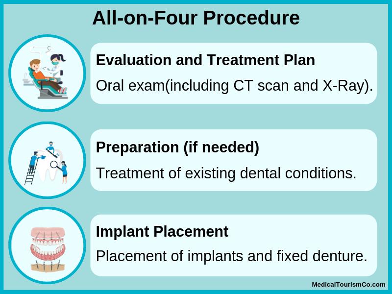 All-on-4 procedure