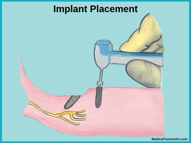 Implant placement in All-on-4