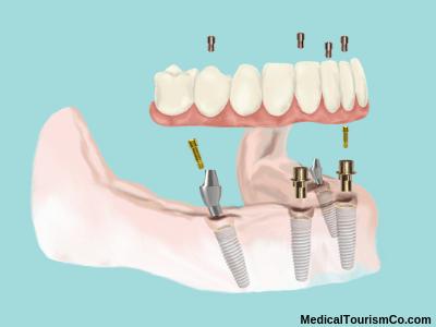 Hybrid denture on All-on-4