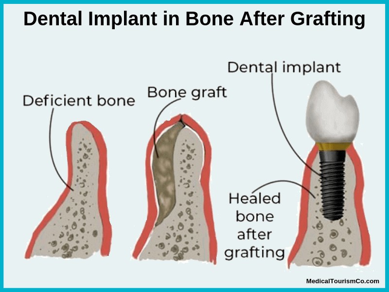 Bone grafting before Dental Implant
